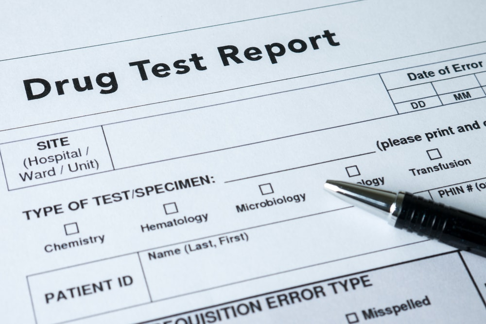 cannabis drug test report